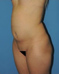 Vaser Liposuction Before & After Patient #264