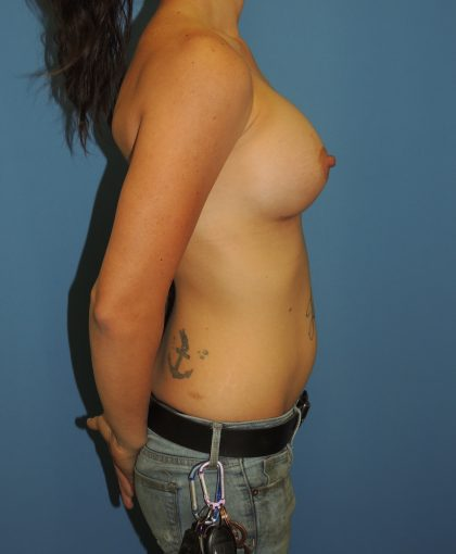Breast Augmentation Before & After Patient #4695