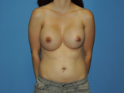 Breast Augmentation Before & After Patient #4709