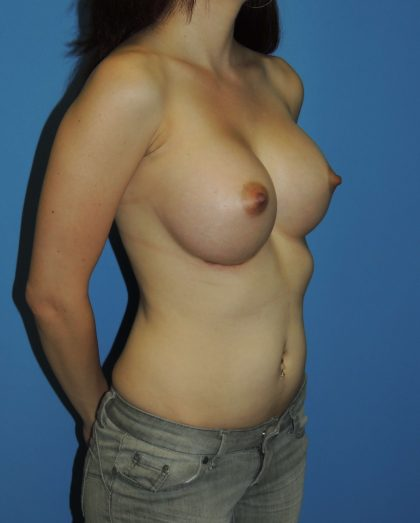 Breast Augmentation Before & After Patient #4729