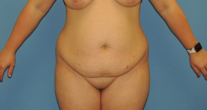 Tummy Tuck Before & After Patient #4908