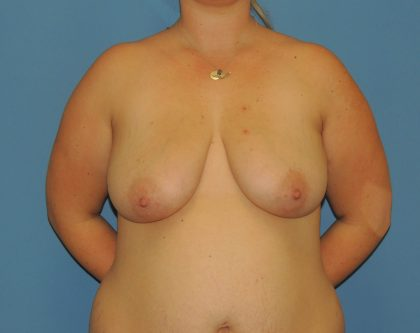 Breast Augmentation with Lift Before & After Patient #4888